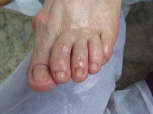 tratament micoza unghie