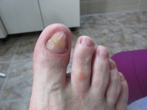 dupa tratament picior diabetic