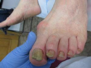 inainte de tratament picior diabetic